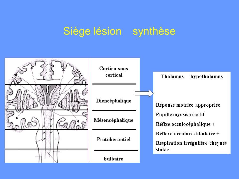 Siège lésion synthèse Thalamus hypothalamus Réponse motrice appropriée Pupille myosis réactif Réflxe occulocéphalique + Réfléxe occulovestibulaire + R