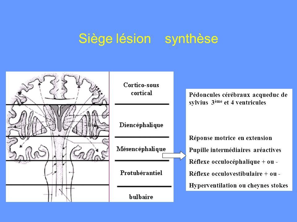 Pédoncules cérébraux acqueduc de sylvius 3 ème et 4 ventricules Réponse motrice en extension Pupille intermédiaires aréactives Réflexe occulocéphaliqu