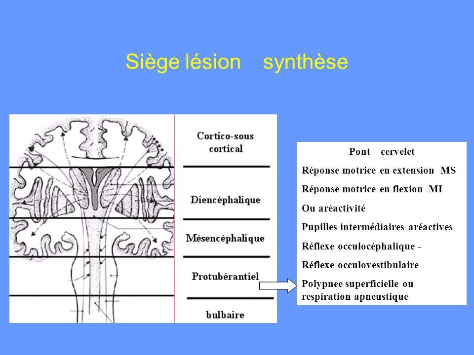 Pont cervelet Réponse motrice en extension MS Réponse motrice en flexion MI Ou aréactivité Pupilles intermédiaires aréactives Réflexe occulocéphalique