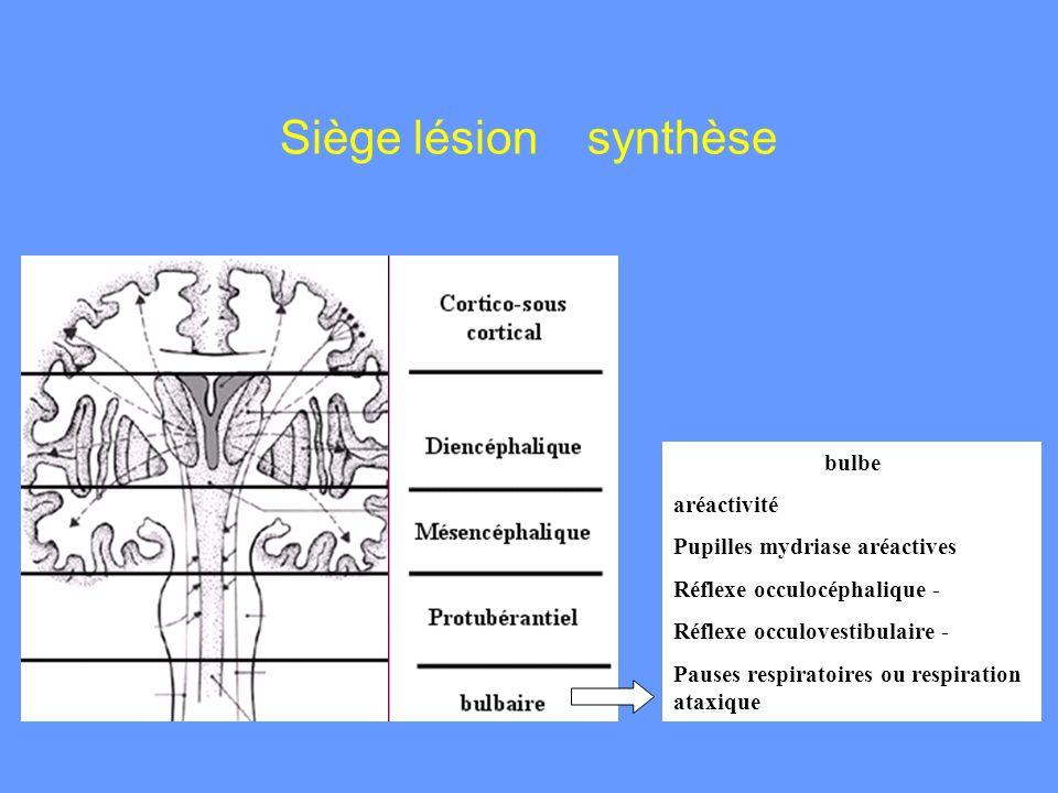 bulbe aréactivité Pupilles mydriase aréactives Réflexe occulocéphalique - Réflexe occulovestibulaire - Pauses respiratoires ou respiration ataxique Si
