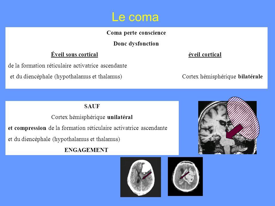 Le coma Coma perte conscience Donc dysfonction Éveil sous corticaléveil cortical de la formation réticulaire activatrice ascendante et du diencéphale
