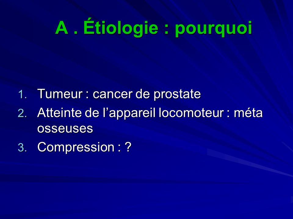 A. Étiologie : pourquoi 1. Tumeur : cancer de prostate 2. Atteinte de lappareil locomoteur : méta osseuses 3. Compression : ?