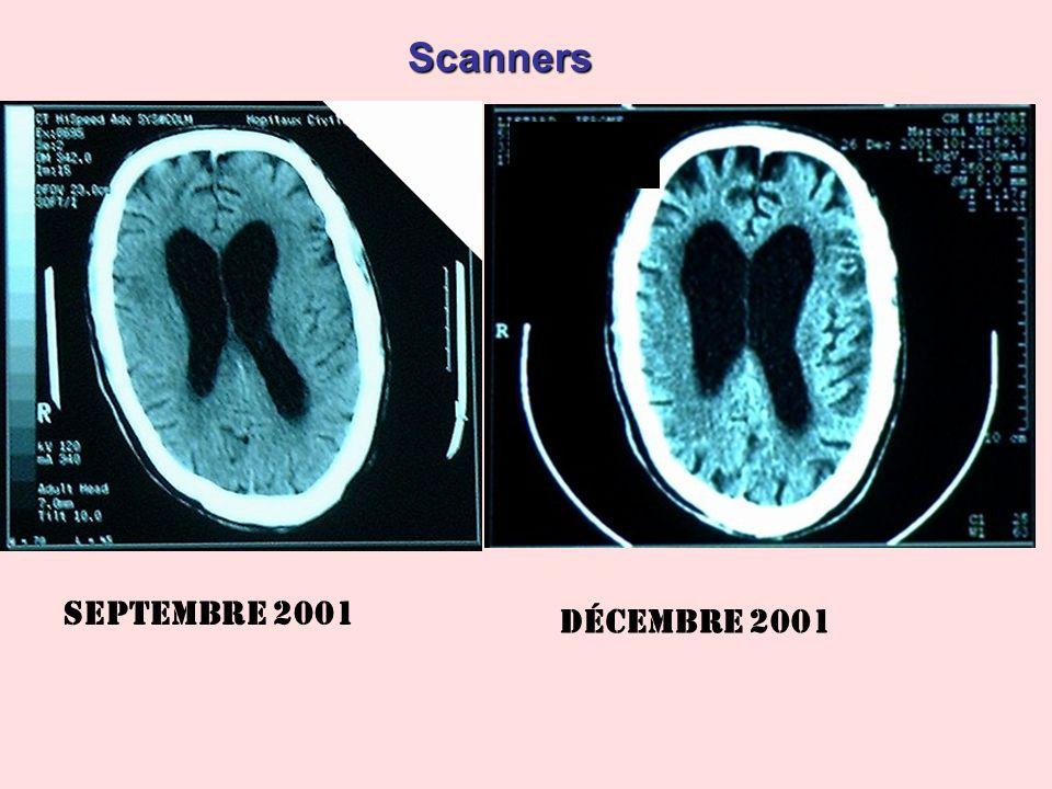 Scanners Septembre 2001 Décembre 2001