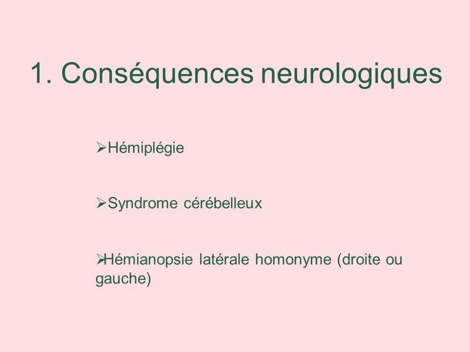 1. Conséquences neurologiques Syndrome cérébelleux Hémianopsie latérale homonyme (droite ou gauche) Hémiplégie