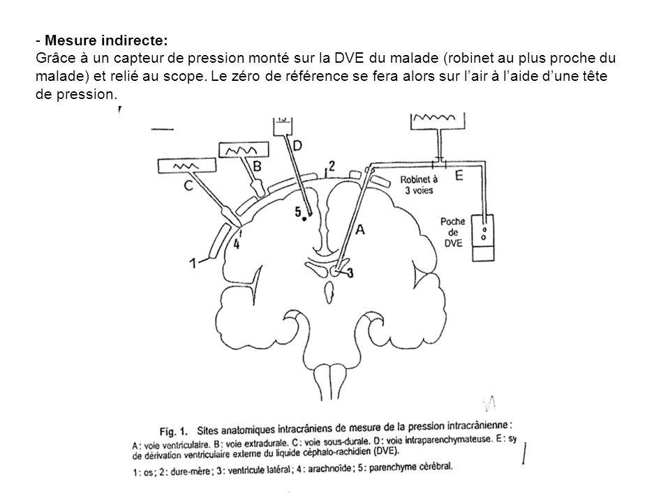 - Mesure indirecte: Grâce à un capteur de pression monté sur la DVE du malade (robinet au plus proche du malade) et relié au scope. Le zéro de référen