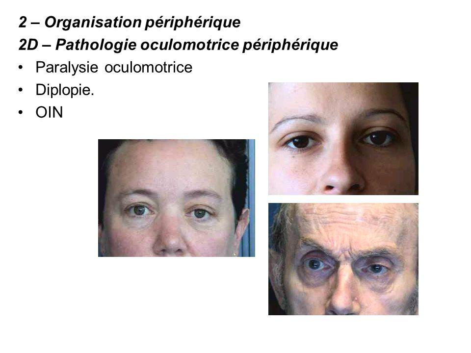 2 – Organisation périphérique 2D – Pathologie oculomotrice périphérique Paralysie oculomotrice Diplopie. OIN