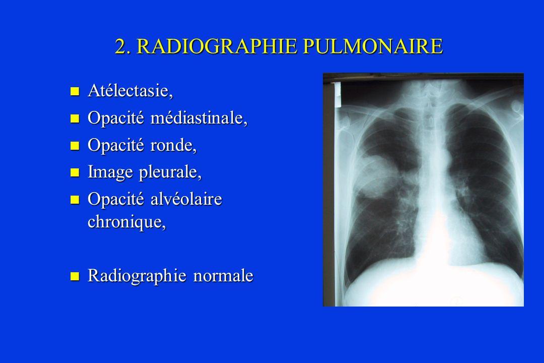 2. RADIOGRAPHIE PULMONAIRE Atélectasie, Atélectasie, Opacité médiastinale, Opacité médiastinale, Opacité ronde, Opacité ronde, Image pleurale, Image p