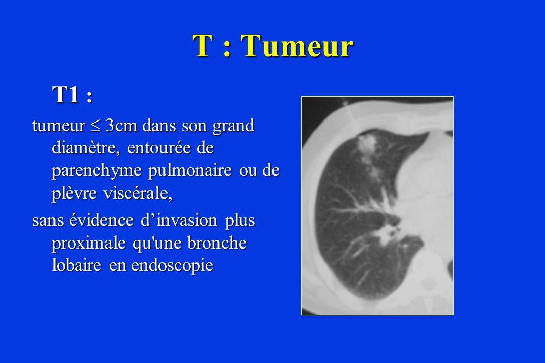 T : Tumeur T1 : tumeur 3cm dans son grand diamètre, entourée de parenchyme pulmonaire ou de plèvre viscérale, sans évidence dinvasion plus proximale q