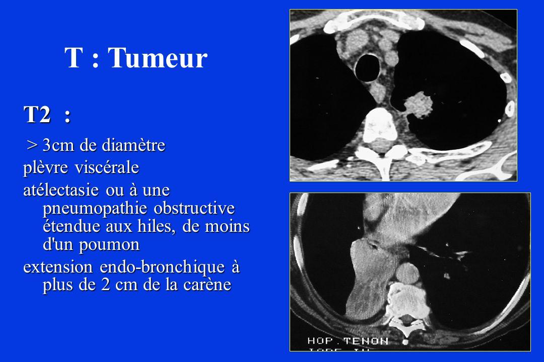 T2 : > 3cm de diamètre > 3cm de diamètre plèvre viscérale atélectasie ou à une pneumopathie obstructive étendue aux hiles, de moins d'un poumon extens