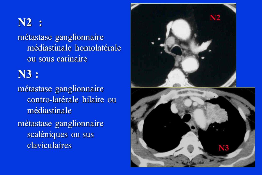N2: métastase ganglionnaire médiastinale homolatérale ou sous carinaire N3 : métastase ganglionnaire contro-latérale hilaire ou médiastinale métastase