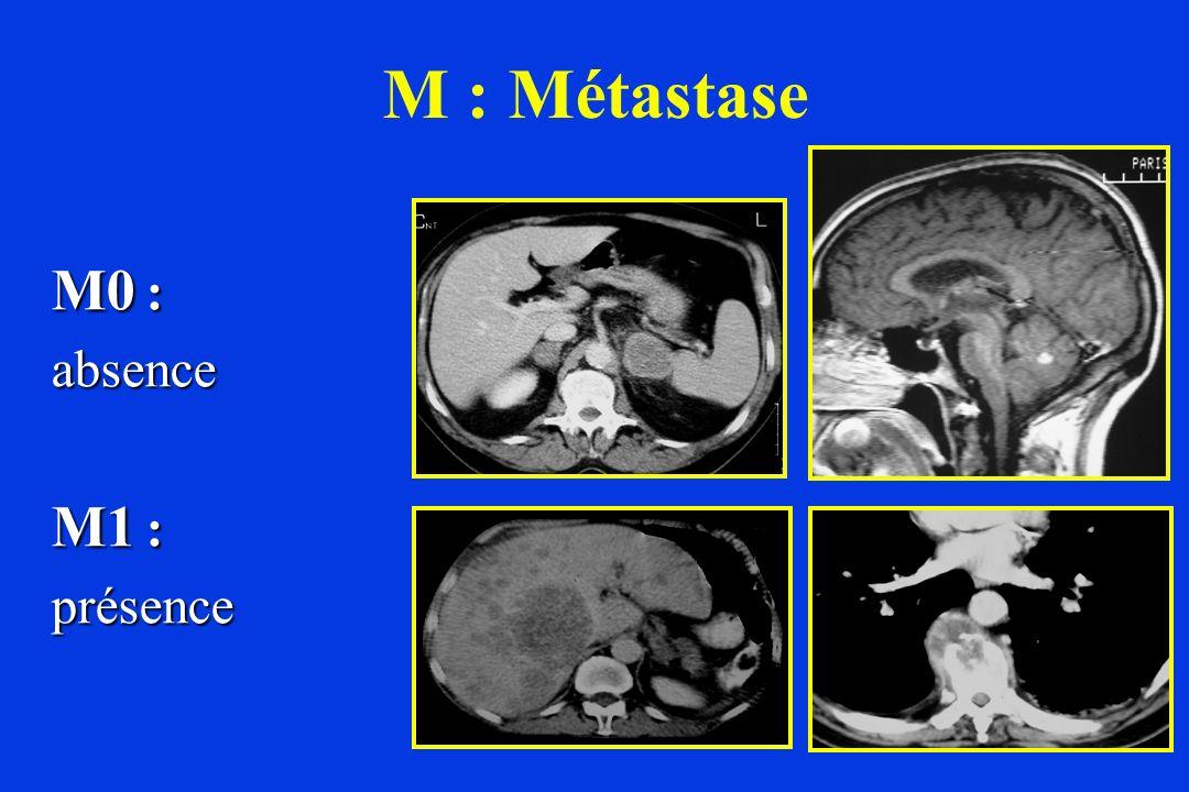 M0 : absence M1 : présence M : Métastase