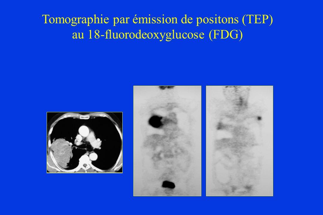 Tomographie par émission de positons (TEP) au 18-fluorodeoxyglucose (FDG)