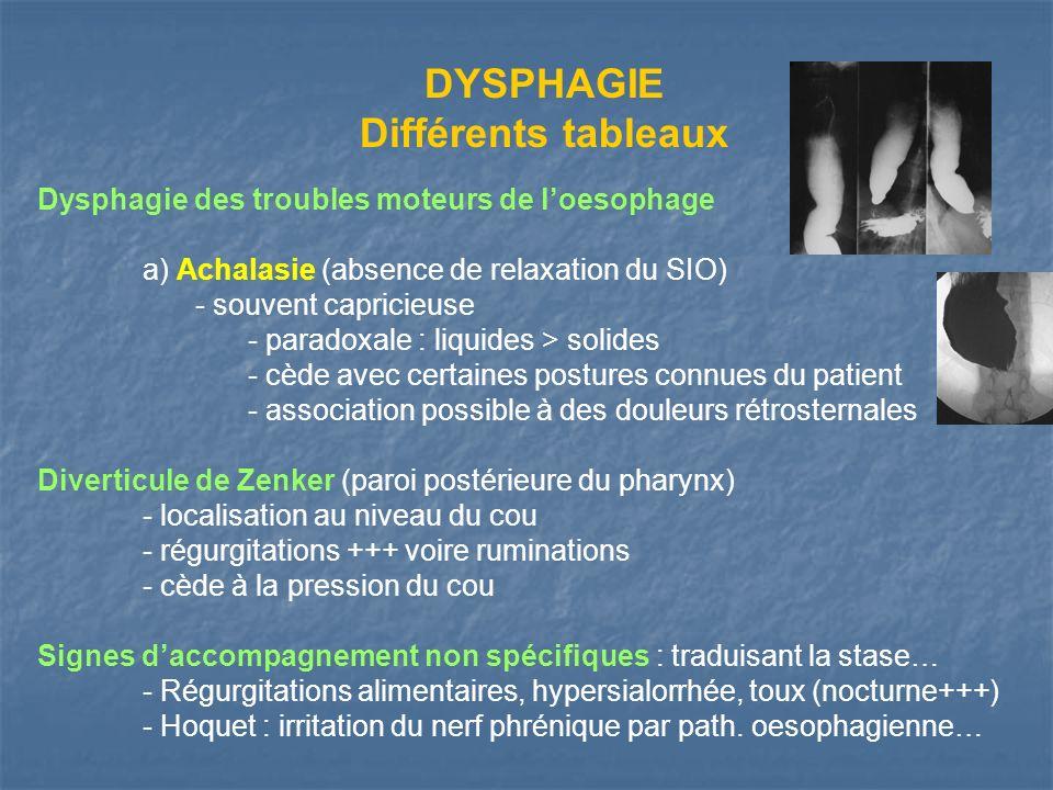 DYSPHAGIE Différents tableaux Dysphagie des troubles moteurs de loesophage a) Achalasie (absence de relaxation du SIO) - souvent capricieuse - paradox