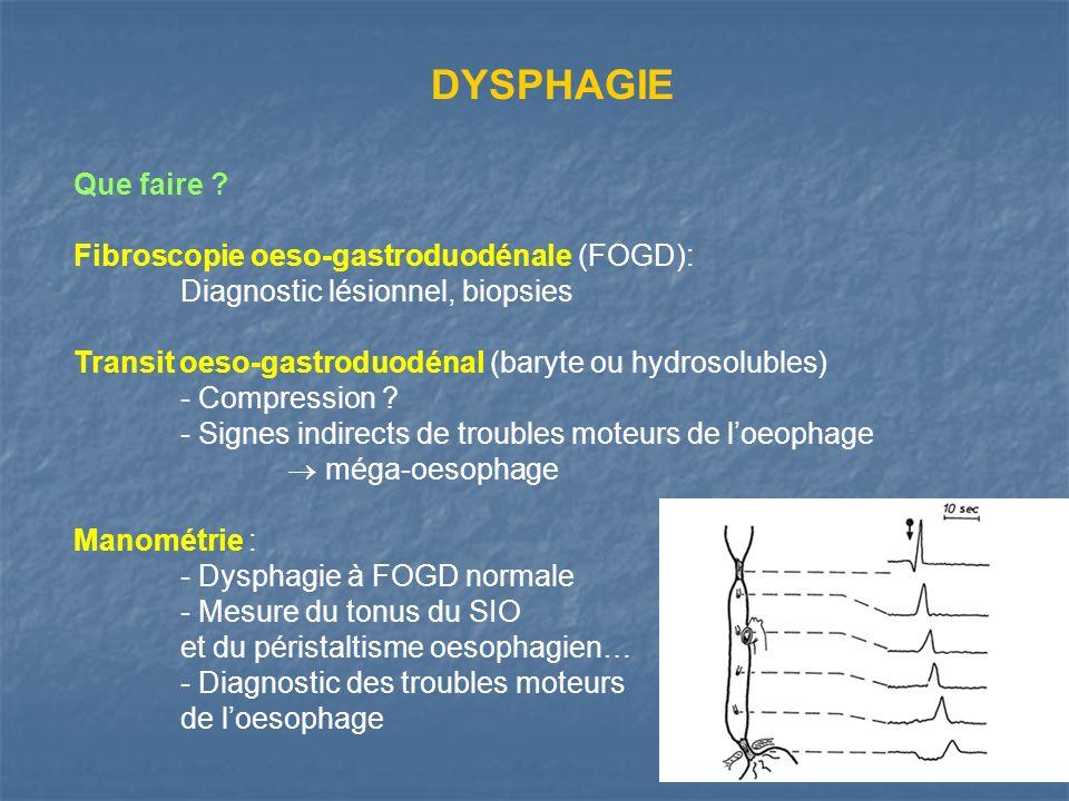 Que faire ? Fibroscopie oeso-gastroduodénale (FOGD): Diagnostic lésionnel, biopsies Transit oeso-gastroduodénal (baryte ou hydrosolubles) - Compressio