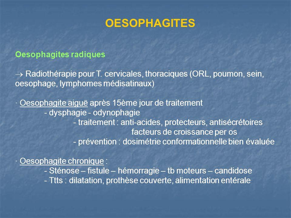 OESOPHAGITES Oesophagites radiques Radiothérapie pour T. cervicales, thoraciques (ORL, poumon, sein, oesophage, lymphomes médisatinaux) · Oesophagite