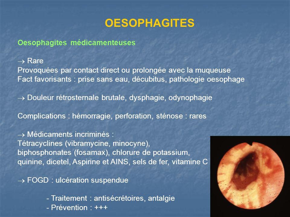 OESOPHAGITES Oesophagites médicamenteuses Rare Provoquées par contact direct ou prolongée avec la muqueuse Fact favorisants : prise sans eau, décubitu