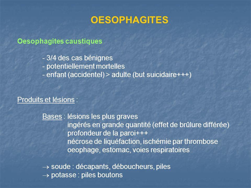 OESOPHAGITES Oesophagites caustiques - 3/4 des cas bénignes - potentiellement mortelles - enfant (accidentel) > adulte (but suicidaire+++) Produits et