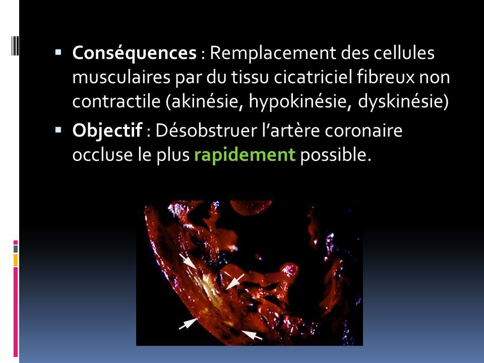 Conséquences : Remplacement des cellules musculaires par du tissu cicatriciel fibreux non contractile (akinésie, hypokinésie, dyskinésie) Objectif : D
