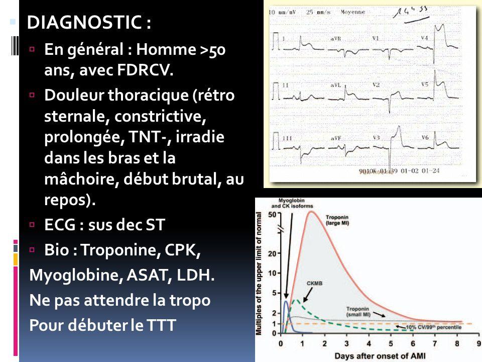 DIAGNOSTIC : En général : Homme >50 ans, avec FDRCV. Douleur thoracique (rétro sternale, constrictive, prolongée, TNT-, irradie dans les bras et la mâ