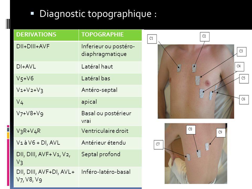 Diagnostic topographique : DERIVATIONSTOPOGRAPHIE DII+DIII+AVFInferieur ou postéro- diaphragmatique DI+AVLLatéral haut V5+V6Latéral bas V1+V2+V3Antéro