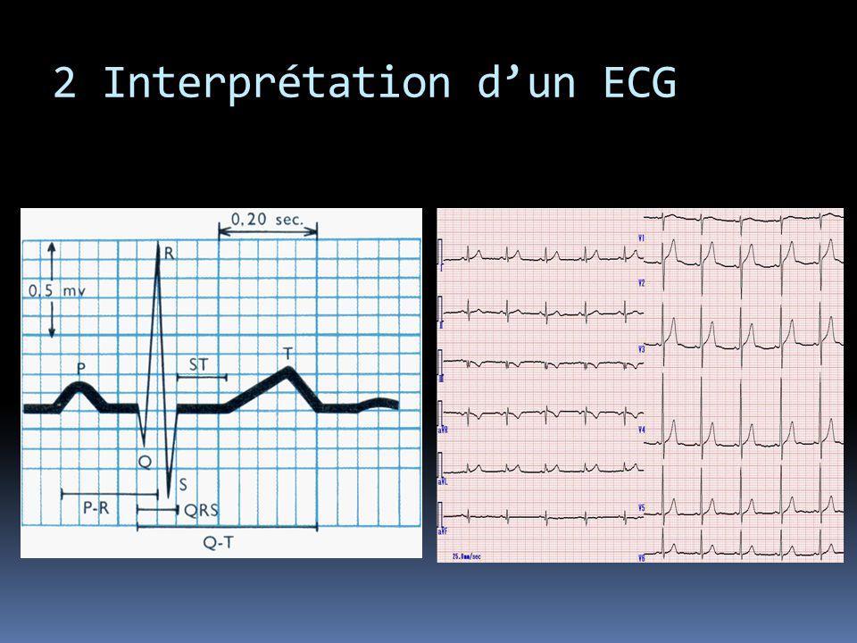 2 Interprétation dun ECG