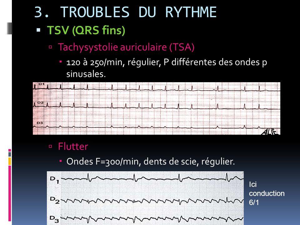 3. TROUBLES DU RYTHME TSV (QRS fins) Tachysystolie auriculaire (TSA) 120 à 250/min, régulier, P différentes des ondes p sinusales. Flutter Ondes F=300