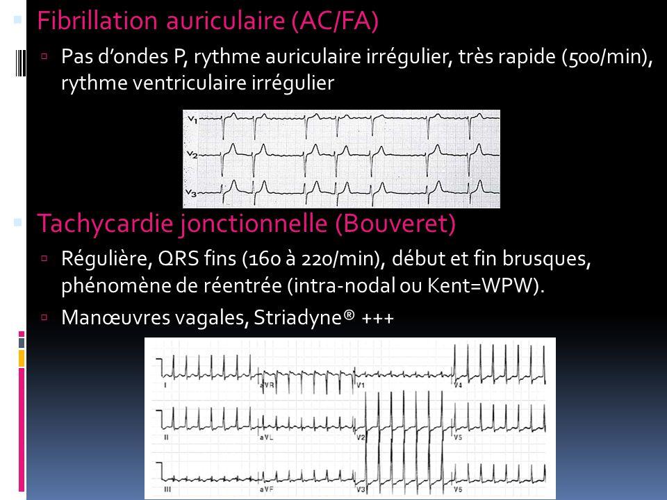 Fibrillation auriculaire (AC/FA) Pas dondes P, rythme auriculaire irrégulier, très rapide (500/min), rythme ventriculaire irrégulier Tachycardie jonct