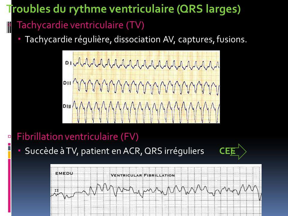 Troubles du rythme ventriculaire (QRS larges) Tachycardie ventriculaire (TV) Tachycardie régulière, dissociation AV, captures, fusions. Fibrillation v