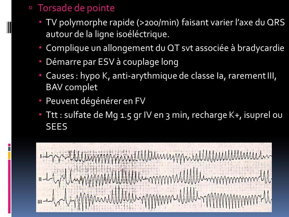 Torsade de pointe TV polymorphe rapide (>200/min) faisant varier laxe du QRS autour de la ligne isoéléctrique. Complique un allongement du QT svt asso