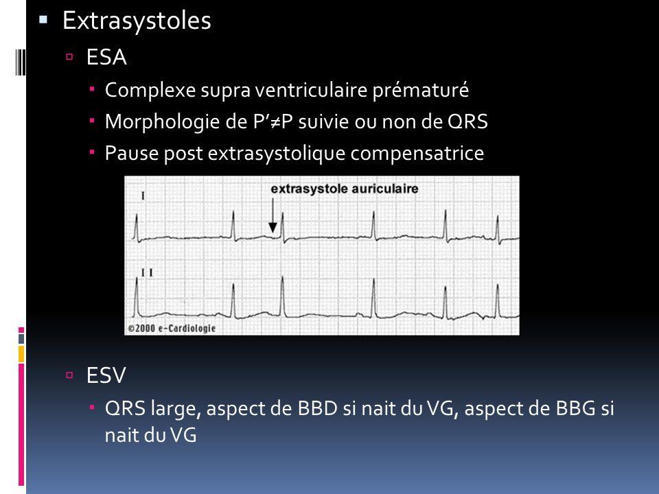 Extrasystoles ESA Complexe supra ventriculaire prématuré Morphologie de PP suivie ou non de QRS Pause post extrasystolique compensatrice ESV QRS large