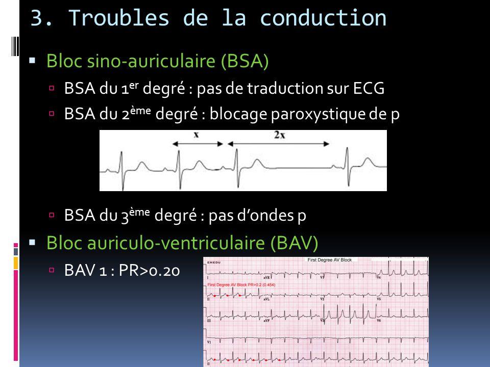 3. Troubles de la conduction Bloc sino-auriculaire (BSA) BSA du 1 er degré : pas de traduction sur ECG BSA du 2 ème degré : blocage paroxystique de p