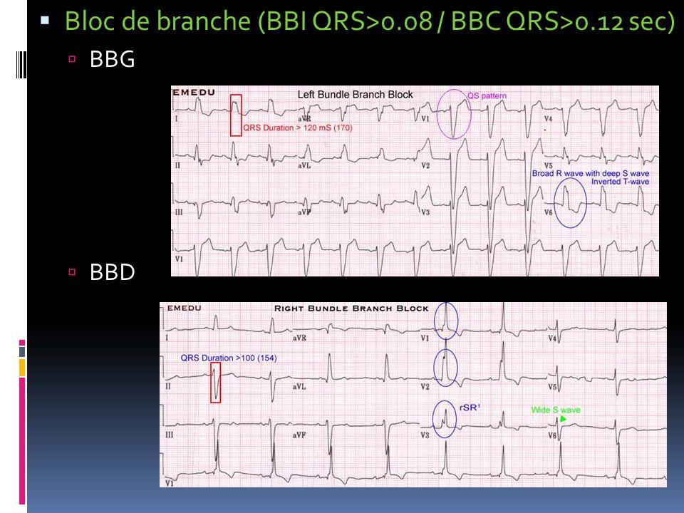 Bloc de branche (BBI QRS>0.08 / BBC QRS>0.12 sec) BBG BBD