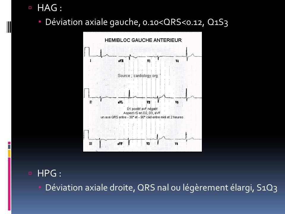 HAG : Déviation axiale gauche, 0.10<QRS<0.12, Q1S3 HPG : Déviation axiale droite, QRS nal ou légèrement élargi, S1Q3