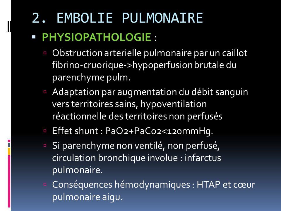 2. EMBOLIE PULMONAIRE PHYSIOPATHOLOGIE : Obstruction arterielle pulmonaire par un caillot fibrino-cruorique->hypoperfusion brutale du parenchyme pulm.