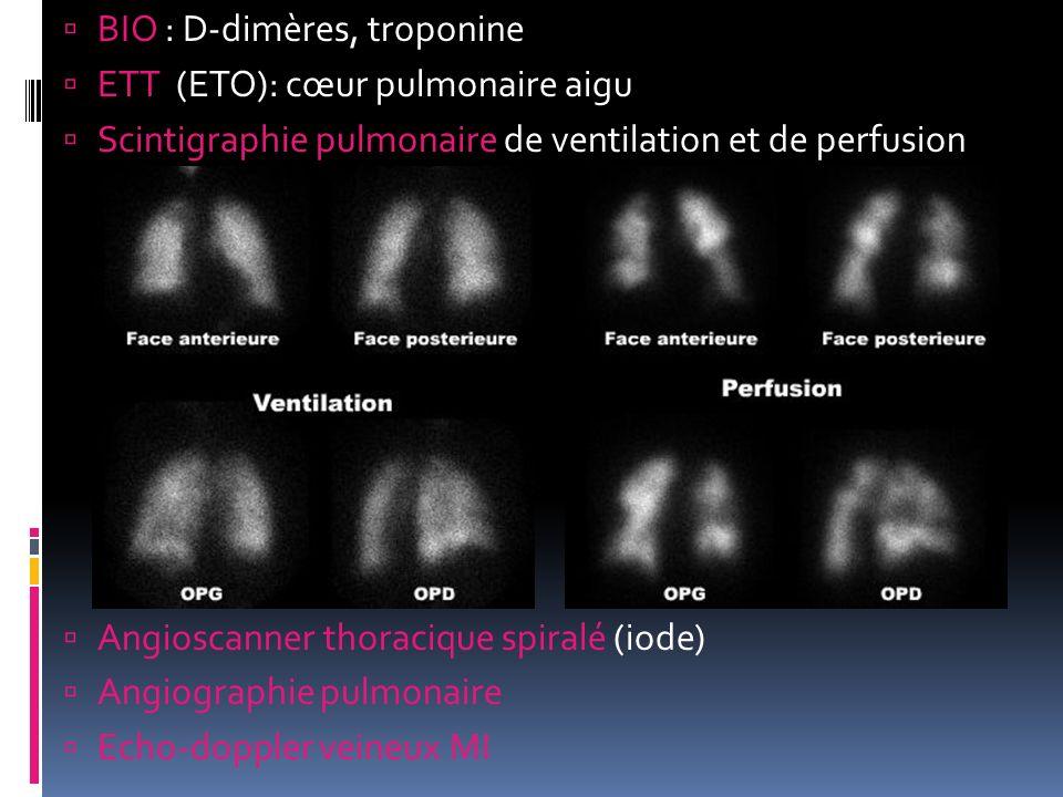 BIO : D-dimères, troponine ETT (ETO): cœur pulmonaire aigu Scintigraphie pulmonaire de ventilation et de perfusion Angioscanner thoracique spiralé (io
