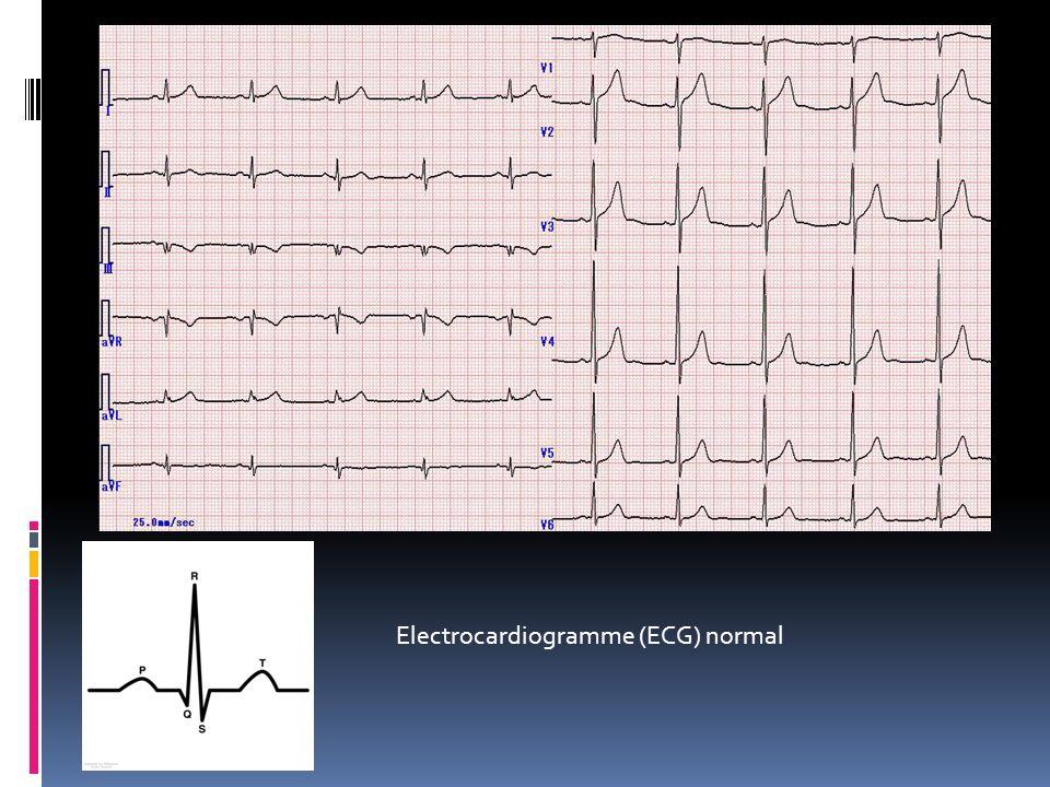 Electrocardiogramme (ECG) normal