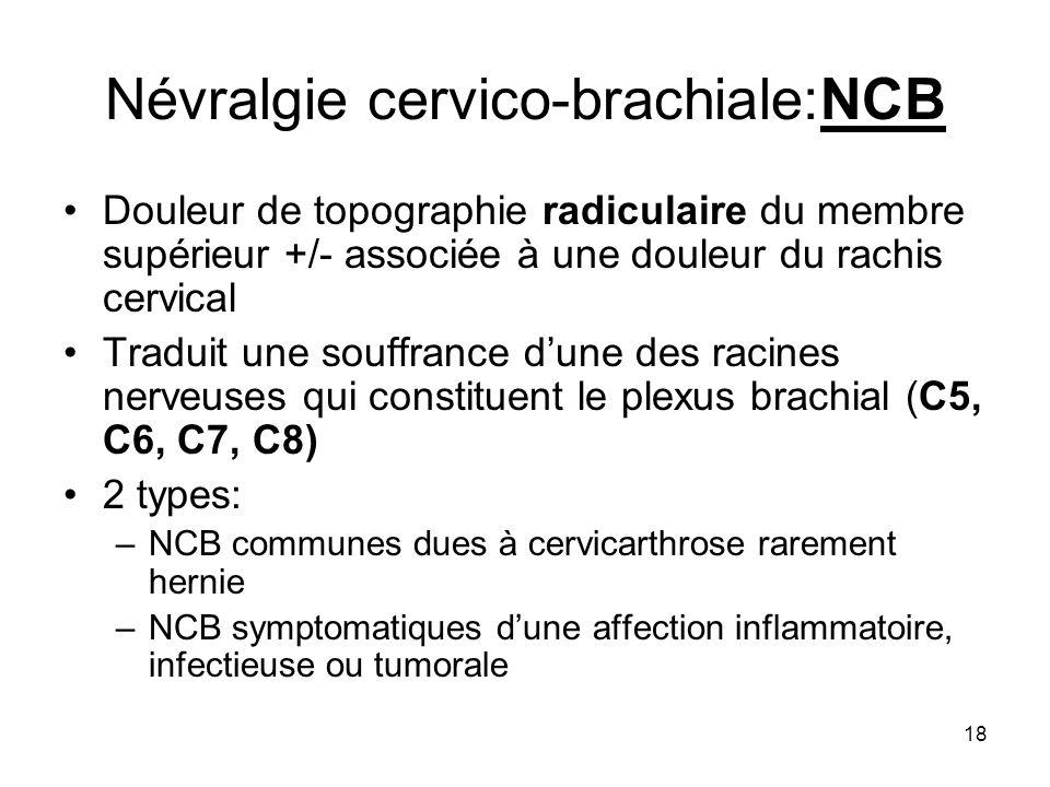 18 Névralgie cervico-brachiale:NCB Douleur de topographie radiculaire du membre supérieur +/- associée à une douleur du rachis cervical Traduit une so
