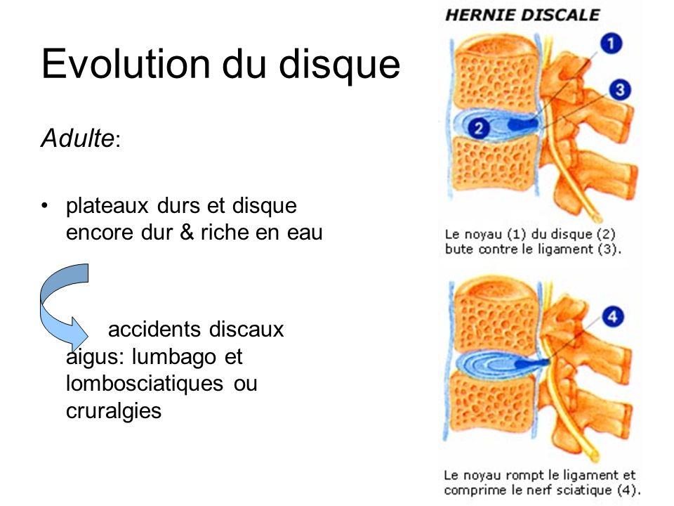 6 Evolution du disque Adulte : plateaux durs et disque encore dur & riche en eau accidents discaux aigus: lumbago et lombosciatiques ou cruralgies