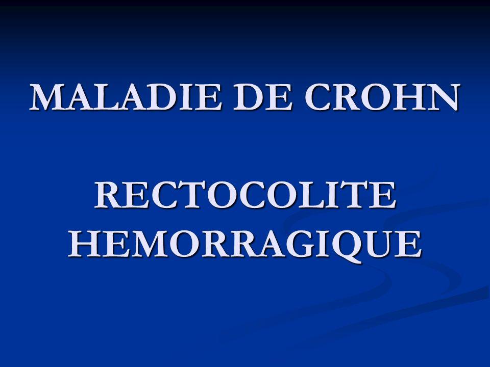 Traitements Médical Médical Chirurgical: Chirurgical: Coloproctectomie totale Coloproctectomie totale + anastomose iléoanale sur réservoir en J
