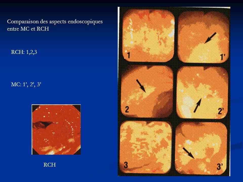 Comparaison des aspects endoscopiques entre MC et RCH RCH: 1,2,3 MC: 1, 2, 3 RCH