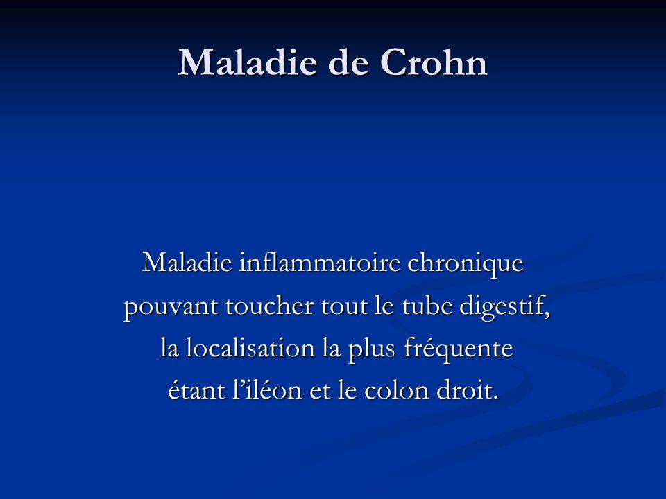 Maladie de Crohn Maladie inflammatoire chronique pouvant toucher tout le tube digestif, pouvant toucher tout le tube digestif, la localisation la plus