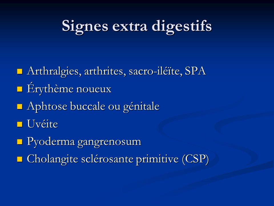 Signes extra digestifs Arthralgies, arthrites, sacro-iléïte, SPA Arthralgies, arthrites, sacro-iléïte, SPA Érythème noueux Érythème noueux Aphtose buc
