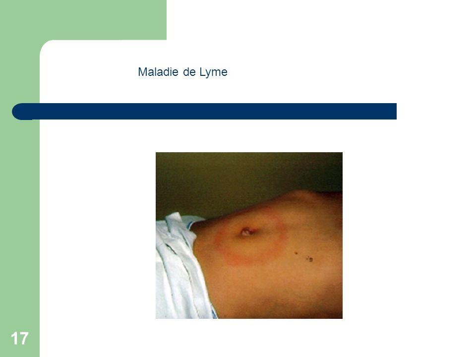 17 Maladie de Lyme