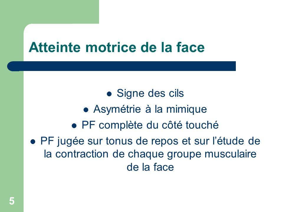 5 Atteinte motrice de la face Signe des cils Asymétrie à la mimique PF complète du côté touché PF jugée sur tonus de repos et sur létude de la contrac