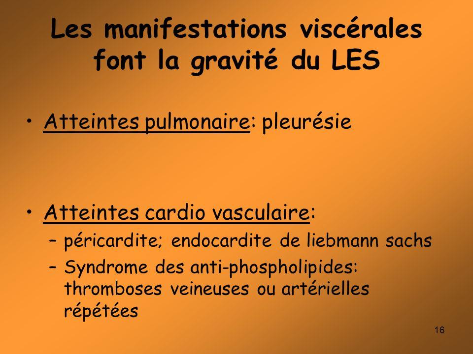 16 Les manifestations viscérales font la gravité du LES Atteintes pulmonaire: pleurésie Atteintes cardio vasculaire: –péricardite; endocardite de lieb