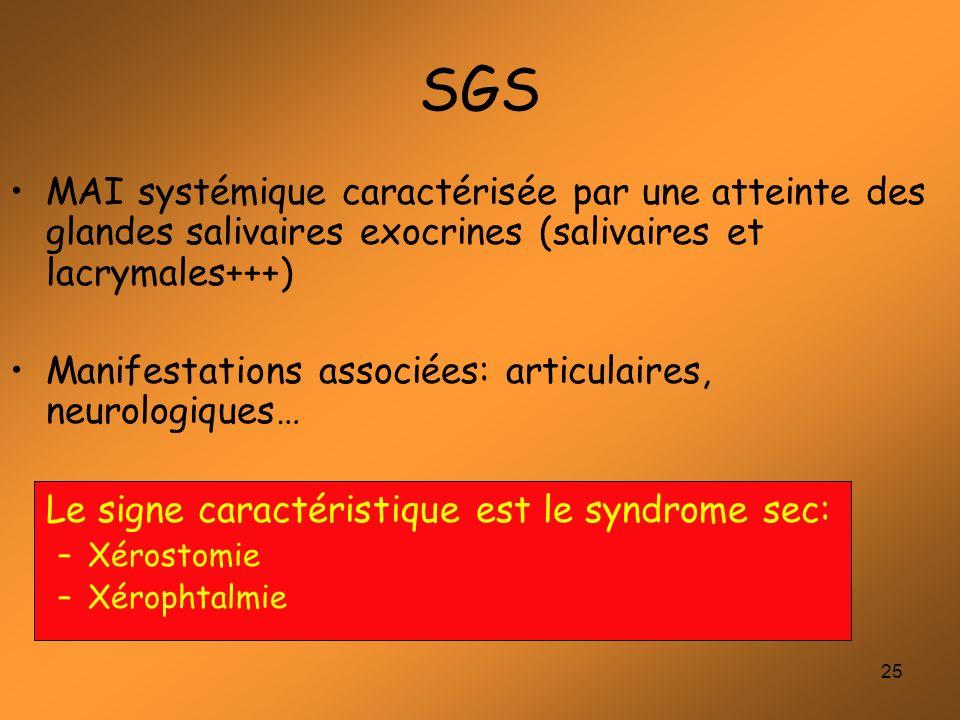 25 SGS MAI systémique caractérisée par une atteinte des glandes salivaires exocrines (salivaires et lacrymales+++) Manifestations associées: articulai