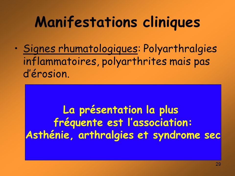 29 Manifestations cliniques Signes rhumatologiques: Polyarthralgies inflammatoires, polyarthrites mais pas dérosion. La présentation la plus fréquente