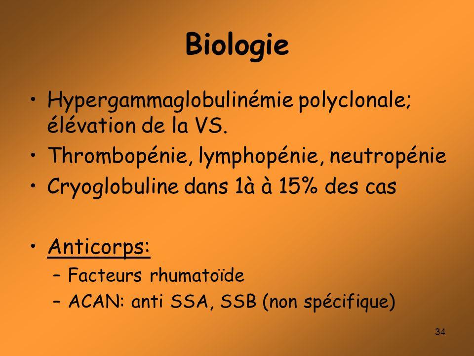 34 Biologie Hypergammaglobulinémie polyclonale; élévation de la VS. Thrombopénie, lymphopénie, neutropénie Cryoglobuline dans 1à à 15% des cas Anticor