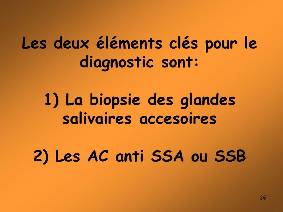 35 Les deux éléments clés pour le diagnostic sont: 1) La biopsie des glandes salivaires accesoires 2) Les AC anti SSA ou SSB