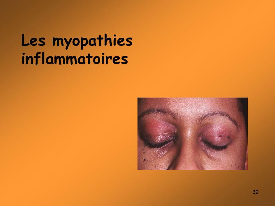 39 Les myopathies inflammatoires